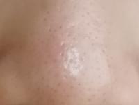 私の鼻です。どうすれば綺麗になりますか? 画像なのでちょっとキレイに写ってしまってます。実際はもっと汚いです。 毛穴が黒くて目立っていて、夕方には鼻が油だらけです。どうすれば治りますか?