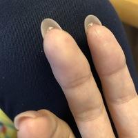 ハイポニキウムを育てる為、オイルや美容液をこまめに使用しているのですが、 爪にくっついて伸びるのではなく、画像のようにゴミがくっついているように育ってしまいます。  どうやったらき ちんと爪にくっつ...