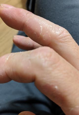が 手のひら の むける 病気 皮