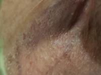 痒み 陰茎 陰茎の鬼頭部に痒みのある湿疹が!市販薬で改善可能?