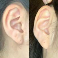 写真は右の耳たぶです。 左が真横から、右が少し前から撮った写真です。  右の耳たぶに2個目を開けに病院に行くのですが、 ピアス付きで3500円なので、もったいないと思っています。 ですので、残りの1個は軟骨開...
