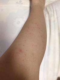 ※グロ注意です※  昨夜、ビートという除毛クリームを使って毛を剃ったら小さく赤い発疹が出てきてしまいました。  クリーム使用後は保湿をしっかりとしたのですが、この発疹はどれくらいで治 りますか?痛み、...