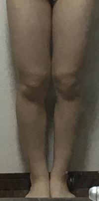 この足はXO脚ですか? 自粛期間中ずっとダイエットをしていた中学2年生で、身長155cm、体重43〜44kg、体脂肪率19%を維持していて、今でも1600kcal以内、有酸素運動30分強を続けています。が、 足はふくらはぎが3...