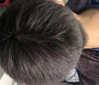 これは円形脱毛症ですか? 先週髪の毛切りましたが、その時は気づかなかったので、最近かと…