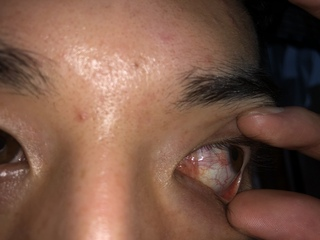 充血 目 原因 の