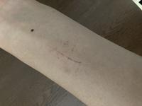 写真付きです。 リスカ跡に見えますか?実際はリスカ跡ではなく爪で引っ掻いたりハサミの刃の部分を押し付けただけなんですかがどうでしょうか?