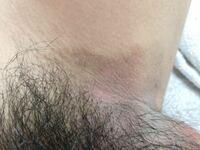 20代の男です。 2~3年くらい前から性器と内ももの境目の部分がとても痒くなり境目のところだけ色が変わってしまい見た目が非常に悪くなってしまっている状態です。 清潔にはしているつもりで、1年くらい前からデ...