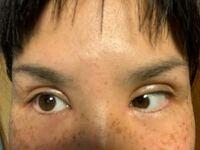 目頭切開+切開の手術をした者です。 今はダウンタイム10日目です。3日前に抜糸をしました。 腫れや食い込みがひどく、外人みたいな印象です。 もしかして失敗…?と不安でたまりません。  カウンセリングでは、...