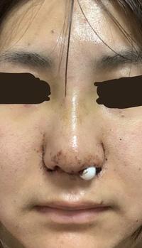 鼻の整形のダウンタイムについて教えてください。 23日に鼻の手術をしました。 手術の内容としては、 プロテーゼ・鼻尖形成術3D法・鼻尖部軟骨移植・軟骨強化プレート法・小鼻縮小FLAP法+外 側法 を受けまし...