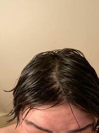 髪濡らしてセンターパートしてみたんですけど、デコの方の薄毛やばいですかね...?
