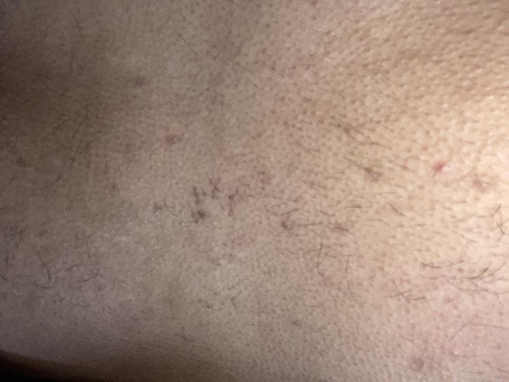 湿疹 胸 の 谷間