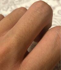 指毛を剃るとこのように黒いぶつぶつができます... これを隠す方法かなくす方法を教えてください! 学生なのでまだ脱毛にはいけません泣 よろしくお願いします
