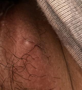 うつる 毛 嚢炎