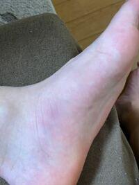 土踏まず?の部分が腫れて少し紫っぽくなってしまいました。 原因としてはハンドボールをプレーしている時にジャンプした時の着地でここに体重がのってしましいそのまま試合を続けていたからです。 これは捻挫と...
