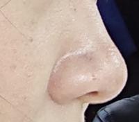 この鼻って鼻柱より小鼻が大きいですよね? 整形するとしたら小鼻縮小でしょうか?