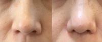 美容外科で鼻尖形成を受けて変化がなく鼻尖形成やり直しとついでにお金を払って小鼻縮小(20万)と鼻の肉片除去(30万)をしたら鼻先細くなると言われて鼻の肉片除去受けました。 もうすぐ施術後2 ヶ月になりますが小鼻は変化ありましたが(左右左がありますが)鼻先の太さも変わらず逆に丸くなってしまったように思えます。 鼻先もまだ堅いです。 これは失敗でしょうか?