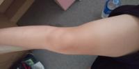 私の足です。 小1からバレーをやっていて現中3で 二ヶ月前に引退しました。 ほぼ運動してなく、筋肉が減って脂肪だらけです。 どうしたら細くなりますか?  食事制限はできませんが 運動ならいくらでもできます。