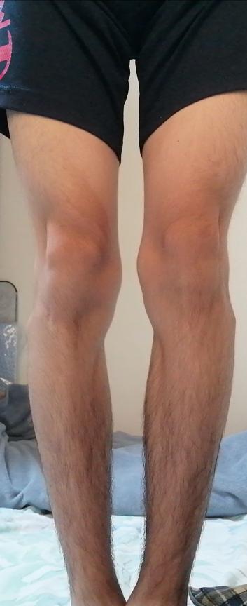 膝の内側の骨が出ています。 どーやってこーなってますか? これは治りますか? 自分で直す方法とかもありますか?