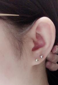 ロブのピアスについて 先日ロブを2連にしました。 耳たぶ小さいですねーって言われたのですが、この耳でもロブ3連いけますか? また、この2連の位置や間隔等変じゃないですか?