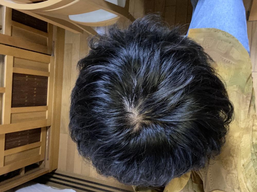 最近ふとした時に頭皮を見てしまい、ハゲてるのかなと心配になってます。これはどうなのでしょうか?教えて頂きたいです。