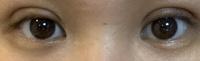 今日二重切開の抜糸に行ってきました。  目尻の左右差が激しいのですが 腫れ引いたら良くなるんですかね? 元々右(写真は左)は左(写真右)より 瞼が少しだけ厚かったです。 埋没もしてたのですが右の方が幅広でした。 その事も伝えたのですが抜糸後 やはり右の方がすごい幅広いのでストレスです。。  多少は左右差良くなるのかな、、、