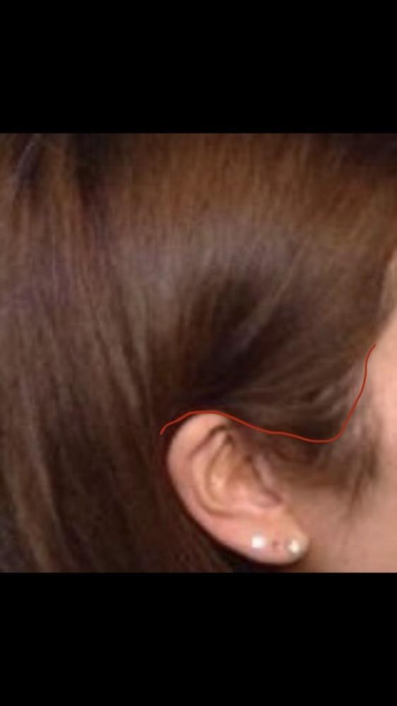 私はもみあげ付近の髪の毛の生える範囲が広く、下の方(耳たぶあたり)まで生えています。 それがとてもコンプレックスで、耳たぶの高さの毛は薄くてして自然なもみあげにしたいと考えています。(赤い線の下...