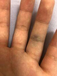 今日バスケしてたら指にボールが当たってが痛みがあったんですけど時間が経つと写真のようになってました。これは、突き指とか捻挫ですか?病院に行くほどでは無いですよね。