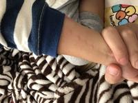 子供の腕の皮膚にできました、蚊にしては規則的だしダニみたいに小さく赤いポツポツでもなく、可能性としてはなんでしょうか? ご存知の方教えてください。