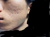 どうも。高校生3年の男子です。 顔の肌荒れ(ニキビ)が治りません。もう3年近く悩まされています。顔が汚いので自分に自信が持てません。早く治したいです。 スキンケアは 洗顔 スキンピールバー 黒 化粧水 ...