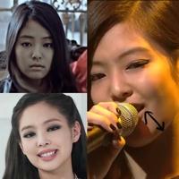 韓国人はよくエラ周りを整形しますが、ジェニーもエラの整形をしています。 この画像見ると、顎下やエラ周りが削られてるように見えるのですがここも整形ですか? 矢印ついてる画像はデビュー前です。 整形禁止と言ってましたが整形は当たり前なんですね。