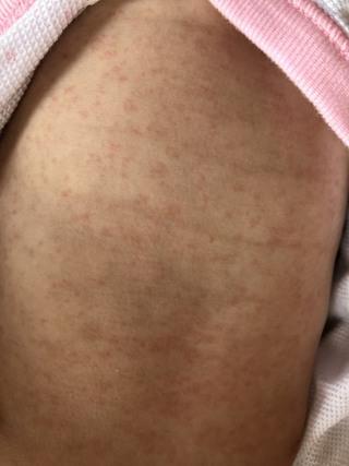 画像 突発 性 発疹