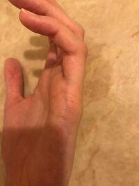 手相(結婚線) の鑑定をお願いいたします。 22歳女性です。 写真は左手の結婚線の部分です。  この手相から分かりますでしょうか。。 結婚時期などこの写真から分かることを教えていただきたいです。