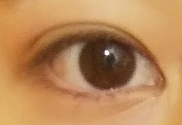 画像荒くて申し訳ないです… ノーマル外カメで取ったのですがこの目は奥二重ですか?普通に目を開けてこうです。あと瞼は伸びていますか?触るとぷにぷにするようになって不安です…目を開ける時も少し重いで...