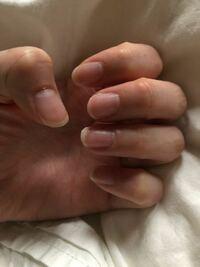 この爪の形は、どうやって整えたらきれいな女爪になれますか??爪切りを使うのは良くないんですよね?