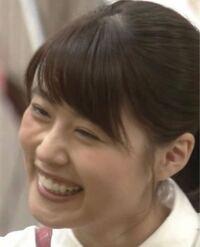 有村架純さんの頬に斜めに入るシワは整形してるから出来るシワと友達が言ってるんですが本当ですか? 医療関係とか整形外科のお医者さんとかに回答もらいたいです