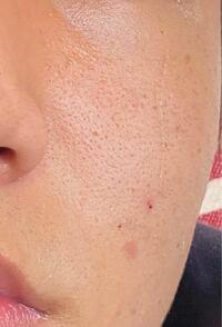 顔の毛穴について 写真のように頬の毛穴が開いてしまっています。 どのようなケアをすれば良くなるのでしょうか? 高校生です!