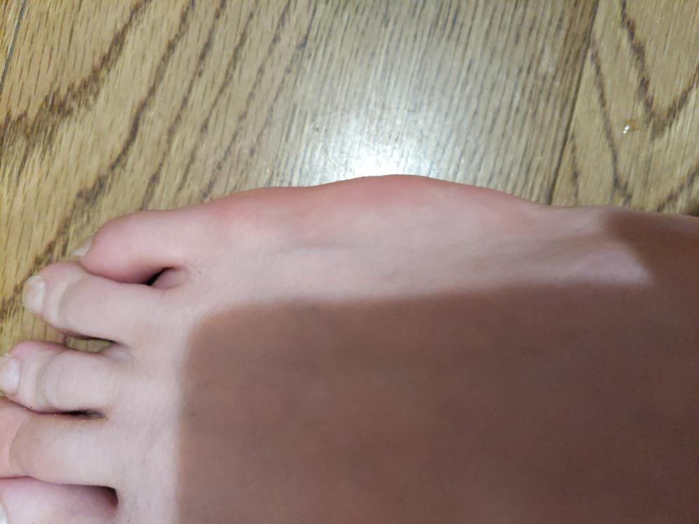 走っていると、足の側面に痛みが出ます。 僕の足は他の人とちょっと見た目とか違うんですが、これのせいですか? 痛くならない方法教えてください