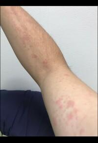 発疹 猫アレルギー 猫アレルギーで湿疹が出た時の原因と対処法