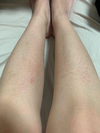 も 痛く も ない 発疹 痒く 赤い
