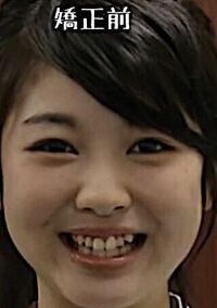 浜辺美波さんって急に顔が変わりましたよね。 好き嫌い.comで美容外科の方が業界で彼女が整形をしたと言うのは割と有名な話だと仰っていたのですが、本当に整形していると思いますか?(二重幅拡張、頬肉吸引、上...