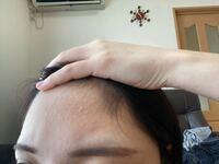 左のおでこだけ産毛?が真っ直ぐに生えてきてるのが悩みです。剃るべきですか??横に流れてくれないんです、、