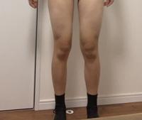 醜い写真で申し訳ないのですが、、、私の太ももは浮腫み、脂肪太り、筋肉太り、の中でどれに当てはまりますか?? 膝の肉もコンプレックスです。 食事制限と30分間のジョギングを1週間ほど続けているのですが、他に脚痩せに効果的なダイエット方法はありますか??