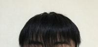 前髪が薄い気がします この前髪は薄すぎですか? それとも梳きすぎなだけですか? また、薄すぎな場合髪を太くする方法などはありますか?