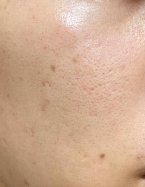 頬の毛穴がすごく気になります。 これは何毛穴になりますか? (ネットで開き毛穴とか、たるみ毛穴とか色々調べたのですが判断がつかなかったです。) 自力で改善する方法があれば教えて欲しいです。 あと皮膚科と美容皮膚科って何が違うのでしょうか? 私のような毛穴を目立たないようにしたい人はどちらに行けば良いのでしょうか。 20歳 男 たぶん脂性肌 よろしくお願いいたします。