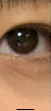 片目 だけ 涙
