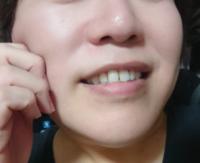 顎を短くする美容整形医療は骨削り以外にあるんでしょうか。 顎が長い感じがして顔の輪郭が大きいです(他人からは気にならないと言われますが気になります)。 顎の骨を削るまではしたくないですが、それ以外に顎を短くする方法はあるのでしょうか。 顎の筋肉も硬直したりしていればボトックスなどでも適用がありそうですが。。 お詳しい方、経験された方、ご意見をお願いします。 なお、全然気にするほどではない、と...