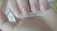 至急おねがいします 何故か指と爪の間が黄色く?なりました 心当たりがあるとすればネイルリムーバーシートを使ってオフしました とりあえずオイル塗ってる状態です 今突然なりました、なにが起こっているんでしょうか