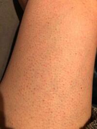 足の毛穴?についてです。。 赤くポツポツと毛穴が目立つのですが何が原因なのでしょうか。 頻繁に毛を剃ったりはしていなく、太もも部分はほぼカミソリなど当てていないのですが、、。 お風呂上がりが特に目立つ...