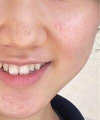 閲覧注意  鼻、顎の黒ずみ 頬と顎の赤み 頬の毛穴のたるみ?開き?がとても気になります。  何かおすすめの化粧品などありますでしょうか?
