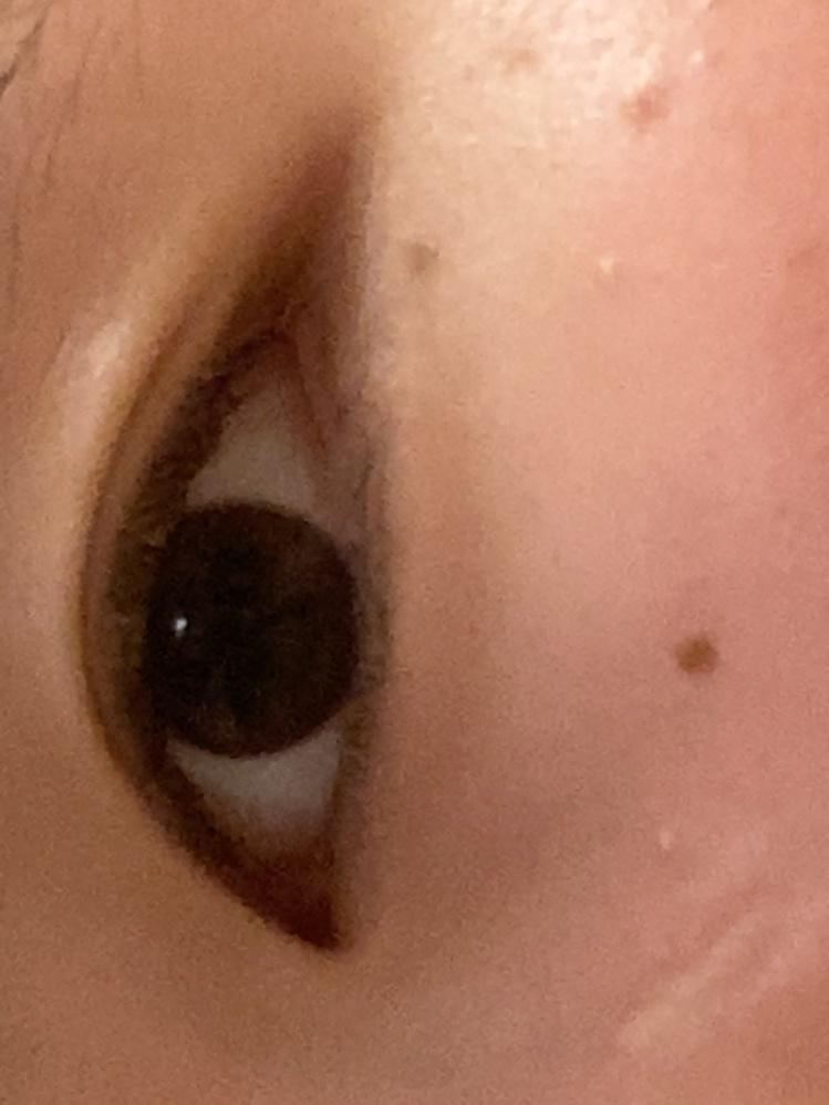 この目は蒙古襞ありますか?